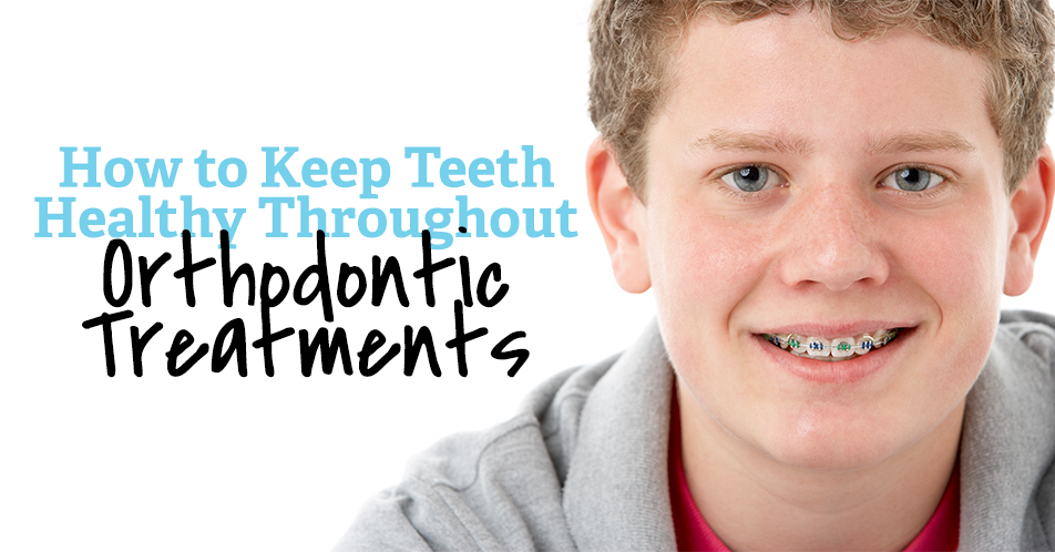 How to Keep Teeth Healthy Throughout Orthodontic Treatments