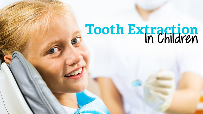 Tooth Extraction in Children
