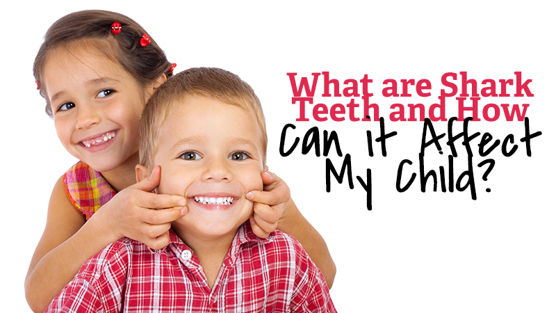 What are Shark Teeth and How Can it Affect My Child?